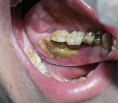 Cuéntale a tu dentista: Osteoporosis